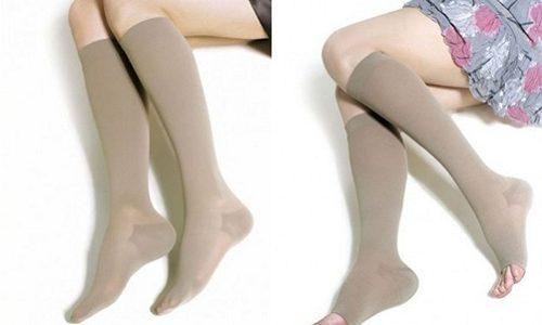 Компрессионное белье при варикозе используется с целью облегчения общего состояния пораженных конечностей
