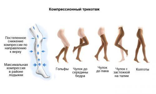 Больные варикозом должны делать зарядку только в компрессионном трикотаже при отеках ног, для защиты сосудов и предотвращения их деформации