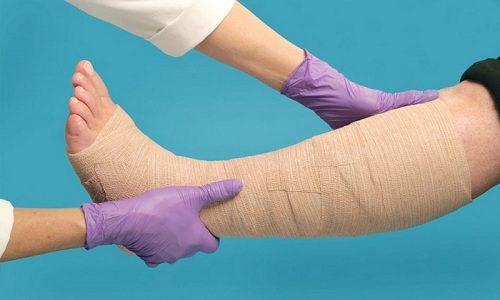 После снятия пиявки на кровоточащие точки нужно наложить ватные тампоны, зафиксировать их эластичной лентой или бинтом