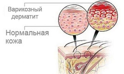 Варикозный дерматит развивается не сразу после возникновения проблемы с венами, признаки можно заметить, когда стенки вен истончаются и в тканевую прослойку проникает кровяной компонент