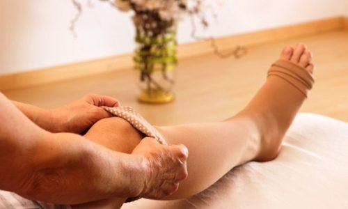 Для снятия дискомфорта рекомендуется использовать специальные медикаменты в сочетании с ношением компрессионного трикотажа