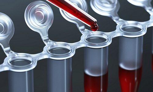 Для установления диагноза женщина должна обязательно сдать кровь на анализ