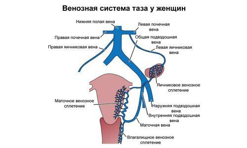 Причиной варикоза являются особенности строения кровеносной системы малого таза