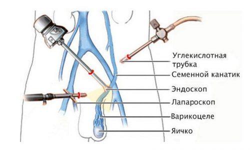 При использовании лапароскопии возможно удаление варикоцеле через небольшие проколы