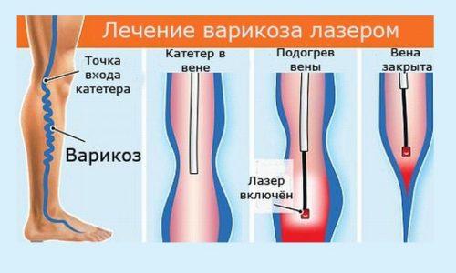 Лазерная терапия варикоза показана только на начальных стадиях заболевания, когда патологический процесс выражен незначительно