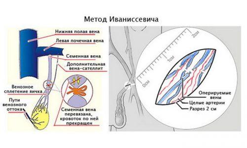 Операция по Иваниссевичу является травматичной, после нее часто возникают рецидивы, поэтому применяется редко