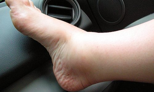 Отеки при варикозе — признак того, что венозные капилляры и лимфатические сосуды не справляются с избытком лимфы и крови, скопившихся в межклеточном пространстве