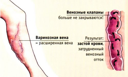 Таблетки от варикоза оказывают общее воздействие на организм, но для получения желаемого результата принимать их нужно по схеме, и постепенно симптомы ослабнут, поскольку пик эффективности препаратов наступает намного раньше окончания курса