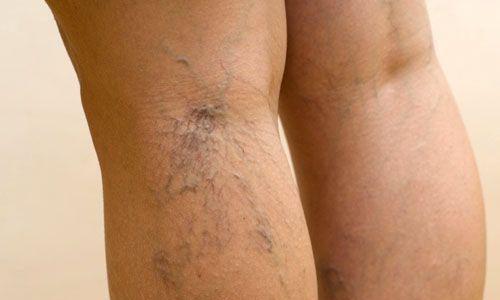 На второй стадии болезни у женщин увеличивается количество варикозно расширенных вен