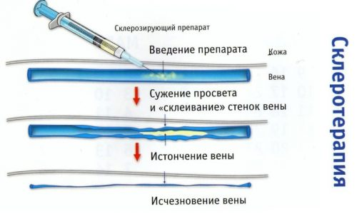 Операция склеротерапии выполняется посредством введения специального препарата в сосуд, где капилляры полопались, через несколько дней состояние сосудов нормализируется
