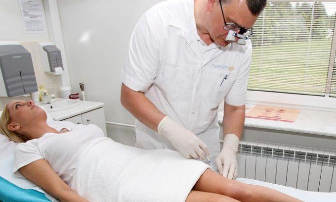 Для лечения недуга используют склеротерапию. В данном случае специалист вводит в патологически расширенную вену специальное вещество (склерозант)
