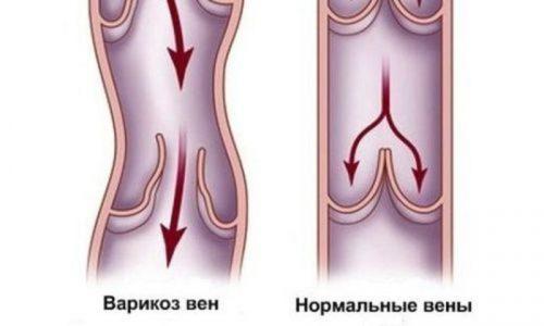 При варикозе половых органов нарушается микроциркуляция крови в венозных сосудах, обеспечивающих обратный отток, вены вздуваются, на них появляются мелкие узелки, которые можно ощутить при пальпации