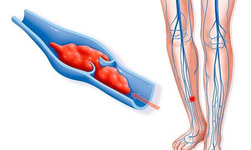 Повреждение внутренней стенки кровеносных сосудов в силу перечисленных причин влечет за собой сильную воспалительную реакцию, вызывающую в проблемном месте слипание тромбоцитов крови, образование тромбов и нарушение нормального кровотока