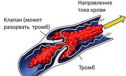При тромбозе формируются кровяные сгустки, которые закупоривают сосуды и препятствуют оттоку крови