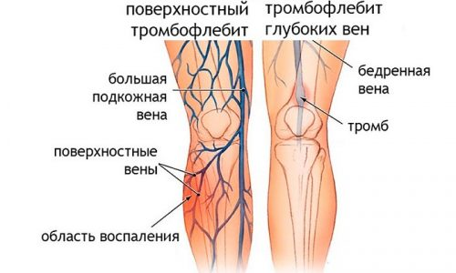 Если данное заболевание не лечить, воспаление будет распространяться на сосуды, расположенные глубоко под кожей