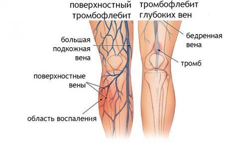 Тромбофлебит нижних конечностей представляет собой распространенное заболевание, связанное с воспалительными явлениями стенок вен и формированием в них плотных сгустков крови, частично или полностью нарушающих нормальную гемодинамику крови