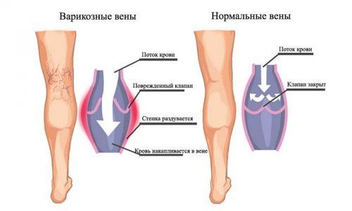 Боли при варикозе - типичный симптом сосудистой патологии нижних конечностей