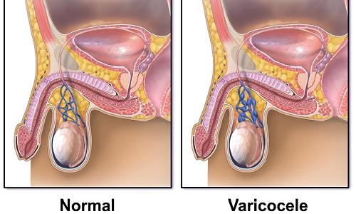 Варикоцеле – это изменение вен в области семенного канатика, формирующееся в результате воздействия варикоза и протекающее в комплексе с нарушением оттока от яичка венозной крови
