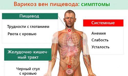 Варикозное расширение вен пищевода: лечение, степени, симптомы ...