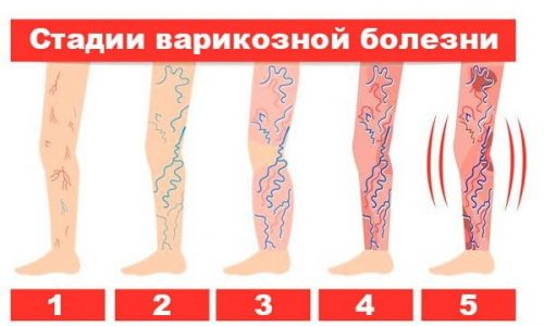 На ранних стадиях развития болезни признаки варикоза нижних конечностей почти незаметны