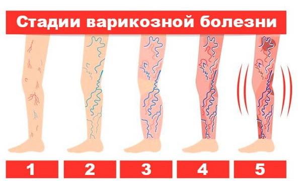Диагностика варикоза: дифференциальная, аппаратная (флебография ...