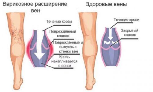 Варикозную болезнь чаще диагностируют у женщин, что связано с физиологическими особенностями организма