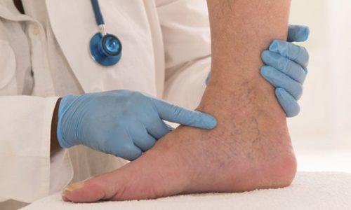Варикозная язва - это патология, которая может затрагивать не только верхние слои кожи, но и жировую клетчатку, мышечные волокна и кости