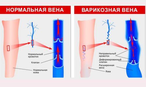 Варикозный дерматит делят на три стадии. 3 стадия - формирование трофической язвы. Этот процесс тяжело поддается лечению и может осложняться присоединением вторичной инфекции