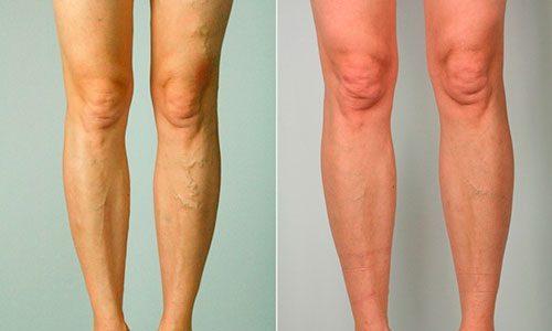 При развитии варикоза глубоких вен происходит необратимое истончение стенок сосудов и нарушение кровообращения