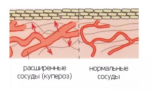 По мере того как купероз прогрессирует, дегенеративные изменения сосудов, лишившихся нормального кровоснабжения и питания, обнаруживают себя множеством сосудистых звездочек