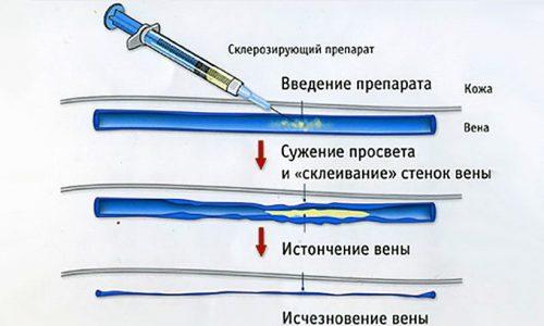 При склеротерапии варикоцеле происходит введение в семенную вену склерозанта, вызывающего закрытие просвета вены вследствие разрастания соединительной ткани