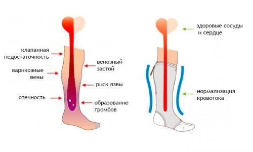 Корректирующие чулки эффективны благодаря давлению, которое возникает во время ношения компрессионных изделий. Подобное воздействие происходит в результате сдавливания венозных сосудов, из-за чего ускоряется кровоток
