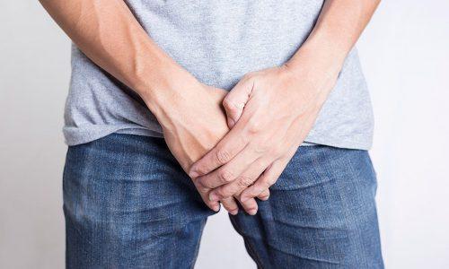 На 3-ей стадии симптоматическая картина варикоцеле более выраженная, неприятные ощущения и боль в мошонке могут появиться внезапно независимо от того, была ли физическая нагрузка или нет