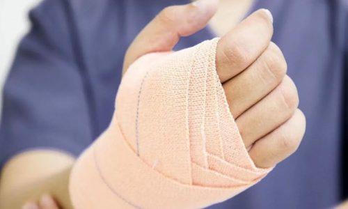 При варикозе рук эффективно прикладывать компресс на больной участок руки или к пораженному сосуду и фиксировать его эластичным бинтом