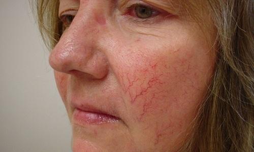 Купероз — скопление сосудистых звездочек на коже — косметический дефект, возникающий из-за повышенной проницаемости и ломкости капиллярной сети