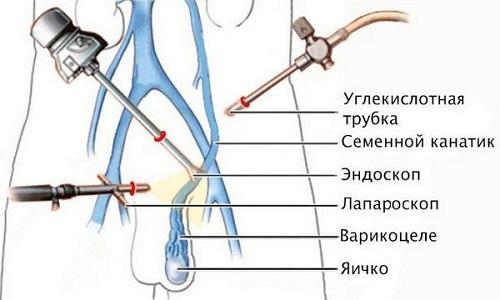 Существует несколько методов и модификаций лечения варикоцеле. К примеру, лапароскопическая варикоцелэктомия