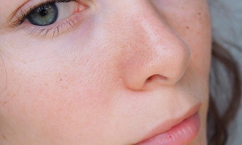 Купероз на носу - проступающая сосудистая сетка багрового или фиолетового оттенка - не самостоятельное заболевание, а начальная стадия патологии, которая называется розацеа (розовые угри)