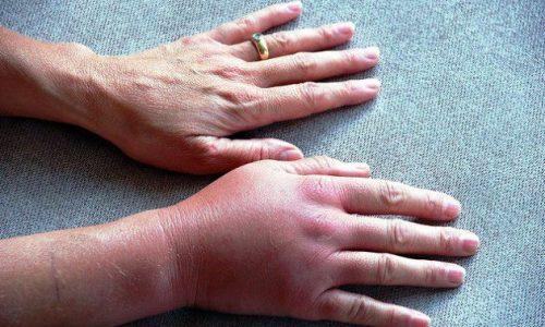 При расширении вен на руках пациенты часто жалуются на жжение и отечность