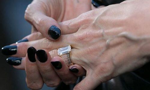 Варикоз рук поражает мужчин гораздо реже, чем женщин