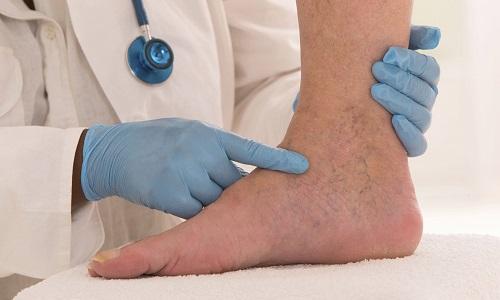 Заниматься фитнесом при варикозе можно только после посещения врача-флеболога