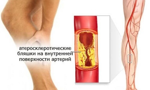 Прием препарата предупреждает развитие атеротромботических осложнений у пациентов с атеросклеротическим поражением сосудов