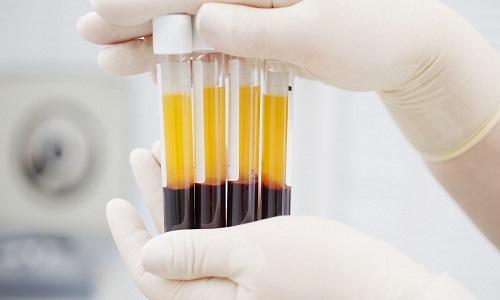 Концентрация телмисартана в плазме крови у женщин превышает таковую у пациентов противоположного пола в несколько раз