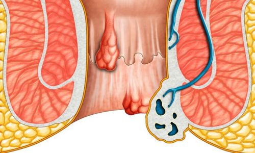 Венарус 1000 применяется в большей мере при симптоматической терапии геморроя