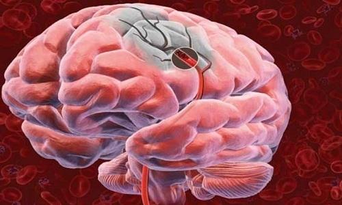 Препарат способен нормализовать состояние сосудов головного мозга