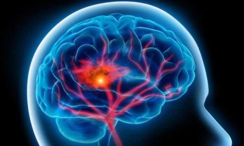 Нарушения мозгового кровообращения лечатся дозами по 500 мг/сутки внутривенно в течение 1,5 недель