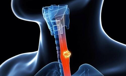 К сожалению, использование раствора Октреотида не устраняет злокачественные новообразования