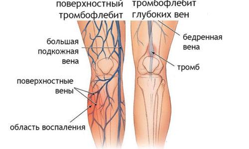 Введение препарата при варикозе нижних конечностей может стать причиной развития тромбофлебита