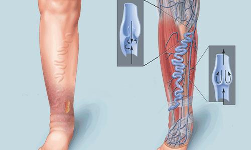 Димексид 99 применяют для лечения варикоза
