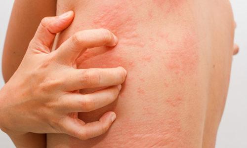 Если применять лекарство в течение длительного времени, то может развиться аллергия на коже