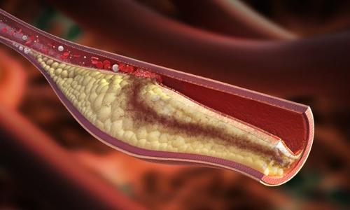Медикамент прерывает коагуляционную цепь и тормозит развитие тромбов и тромбина